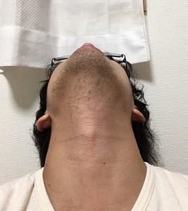 メンズ脱毛3