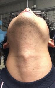 メンズ脱毛4