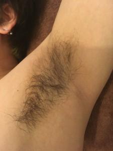 川口 メンズ脱毛