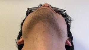 メンズ ヒゲ脱毛