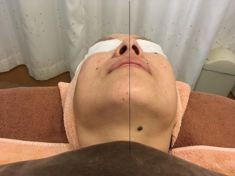 顔左側半分施術